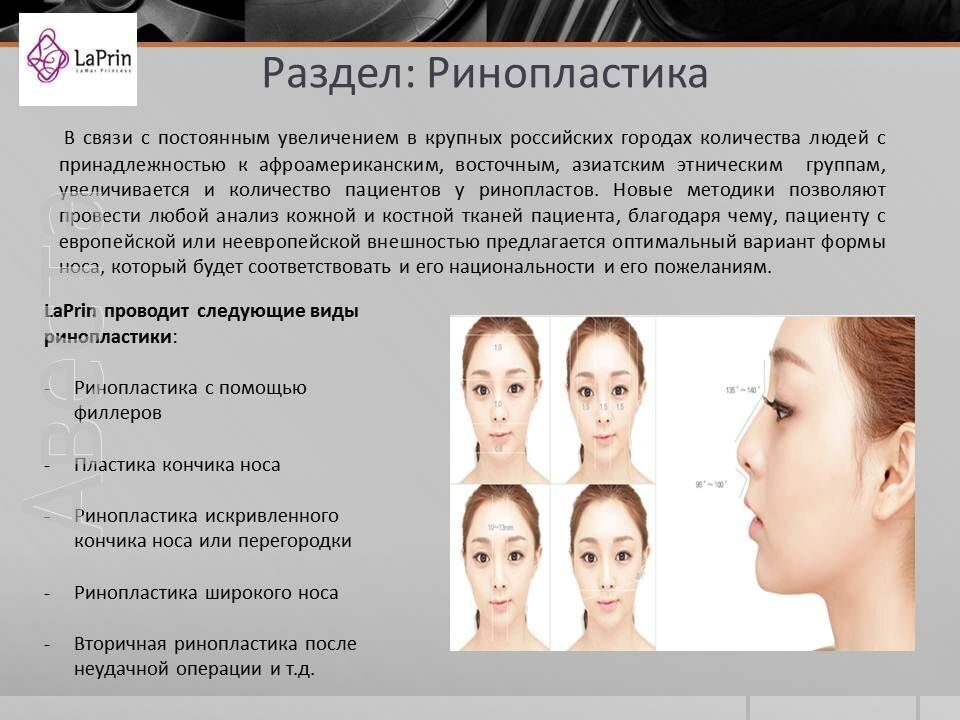 Ринопластика носа отзывы пациентов