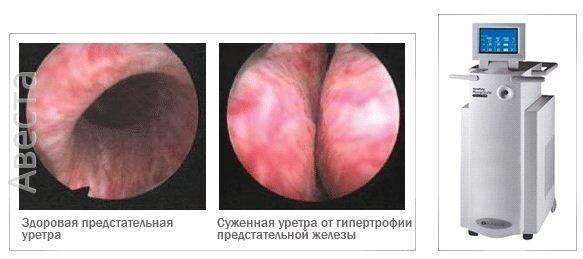 Лечение уколами при аденоме простаты
