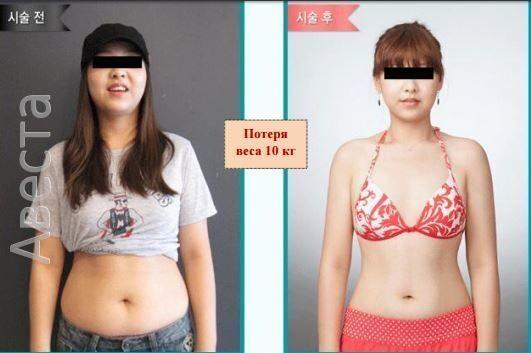 программа после похудения